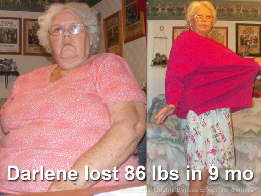 Senior Dropped 86 Lb Using Non-Surgical Roca Labs Regimen